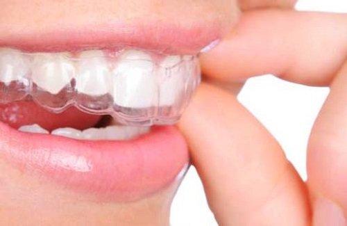 Niềng răng nhanh nhất bao lâu? Cần lưu ý gì khi niềng răng? 3
