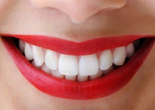 Làm răng sứ thẩm mỹ ở đâu đẹp? Tham khảo thông tin 1