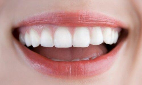 Làm răng sứ thẩm mỹ ở đâu đẹp? Tham khảo thông tin 2