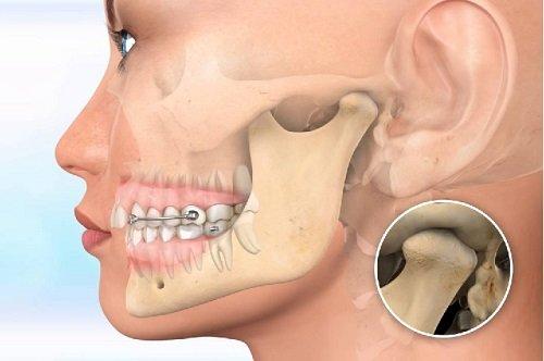 Niềng răng hàm trên bao nhiêu tiền? Các vấn đề liên quan 1