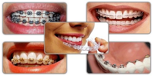 Niềng răng hàm trên bao nhiêu tiền? Các vấn đề liên quan 3