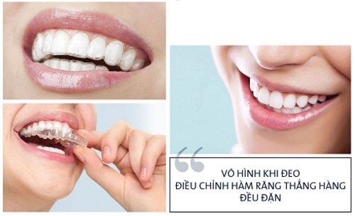 Niềng răng không mắc cài mất bao lâu? Các vấn đề bạn nên biết 2