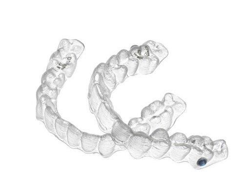 Niềng răng không mắc cài mất bao lâu? Các vấn đề bạn nên biết 3