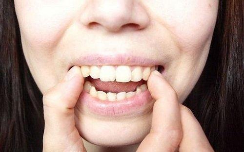Niềng răng vẩu giá bao nhiêu? Nha khoa tư vấn 1