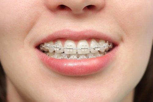 Niềng răng vẩu giá bao nhiêu? Nha khoa tư vấn 2