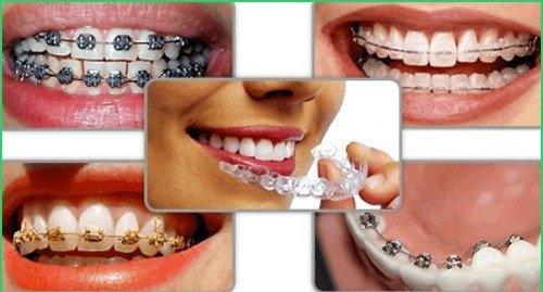 Niềng răng vẩu giá bao nhiêu? Nha khoa tư vấn 3