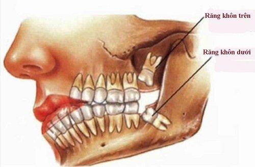 Nhổ răng khôn giá bao nhiêu? Chi phí nhổ răng 1