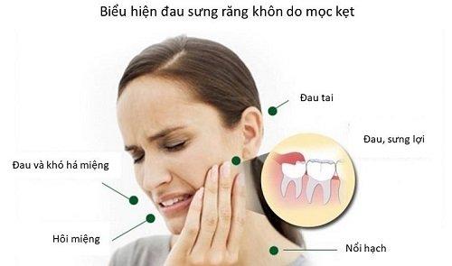 Nhổ răng khôn giá bao nhiêu? Chi phí nhổ răng 2