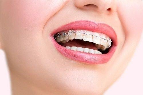 Niềng răng hô giá rẻ - Tham khảo mức chi phí 1