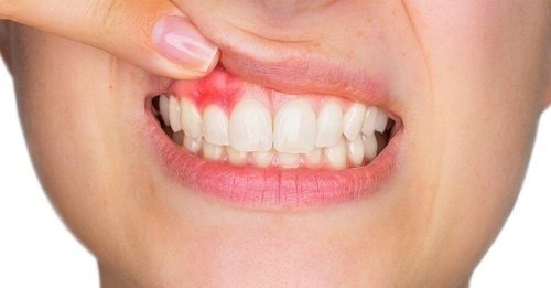 Lắp răng sứ bị sưng lợi - Cách khắc phục hiệu quả 2