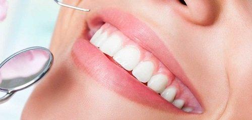 Lắp răng sứ bị sưng lợi - Cách khắc phục hiệu quả 3