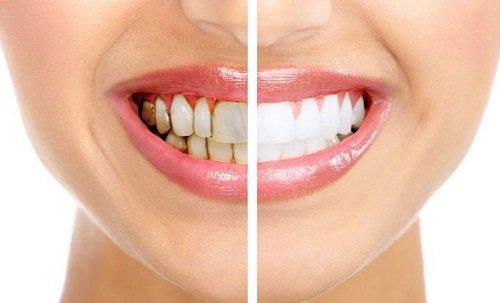 Tẩy trắng răng bị nhiễm tetracycline cho bạn hiệu quả 1