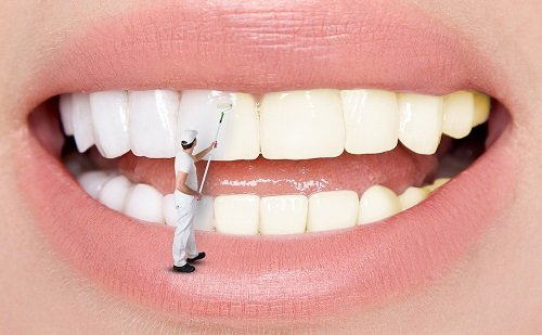 Có nên tẩy trắng răng nhiều lần hay không? 1