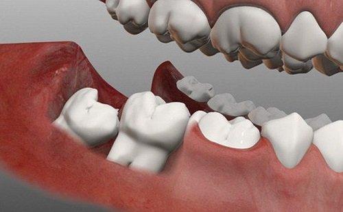 Nhổ răng khôn giá bao nhiêu tiền? Chi phí nhổ răng 1