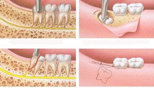 Nhổ răng khôn giá bao nhiêu tiền? Chi phí nhổ răng 3