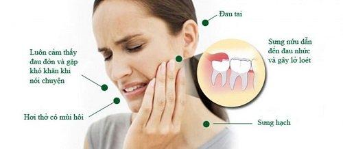 Răng khôn bị mọc lệch - Cách khắc phục hiệu quả 1