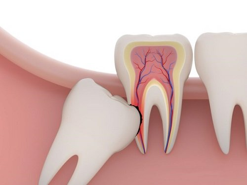 Răng khôn bị mọc lệch - Cách khắc phục hiệu quả 2
