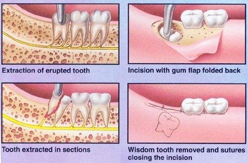 Răng khôn bị mọc lệch - Cách khắc phục hiệu quả 3