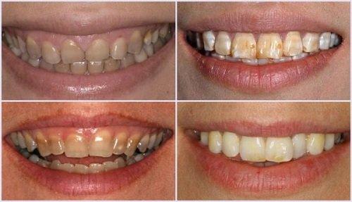 Tẩy trắng răng có ảnh hưởng gì không? Tham khảo 1