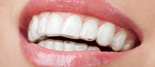 Dụng cụ niềng răng tại nhà có tốt không? Review mới nhất 2