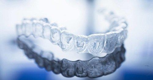 Dụng cụ niềng răng tại nhà có tốt không? Review mới nhất 3
