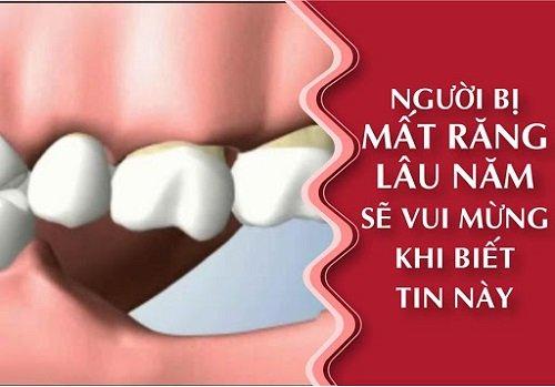 Mất răng lâu năm có trồng được không? Chuyên gia tư vấn 1