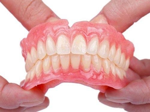 Mất răng lâu năm có trồng được không? Chuyên gia tư vấn 2