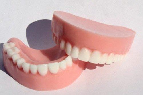 Mất răng lâu năm có trồng được không? Chuyên gia tư vấn 3