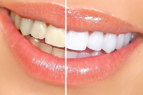 Niềng răng xong có nên tẩy trắng răng? Nha khoa tư vấn 2