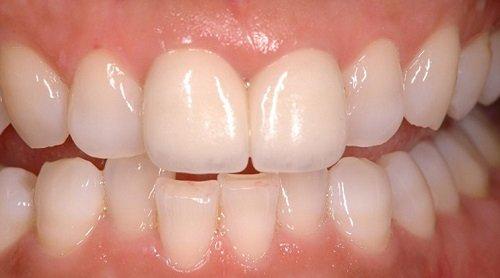Chỉnh răng đều không cần niềng - Tham khảo cách thực hiện 1