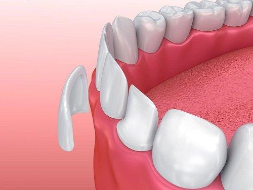 Chỉnh răng đều không cần niềng - Tham khảo cách thực hiện 2
