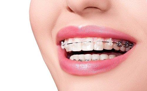 Niềng răng có tốt không? Tìm hiểu chung 1
