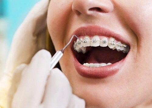 Niềng răng có tốt không? Tìm hiểu chung 2