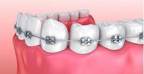 Niềng răng mắc cài 3m ugsl - Tìm hiểu niềng răng 1