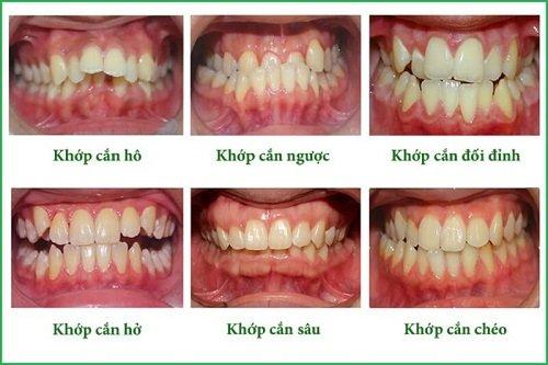 Niềng răng mắc cài 3m ugsl - Tìm hiểu niềng răng 2