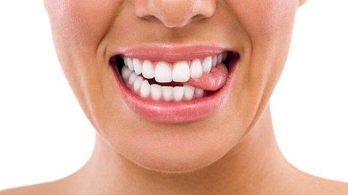 Niềng răng mắc cài 3m ugsl - Tìm hiểu niềng răng 3