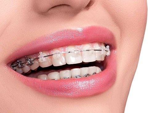 Bọc răng sứ rồi có niềng được không? Nha khoa trả lời câu hỏi 1