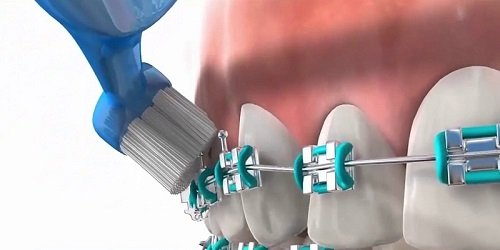 Bọc răng sứ rồi có niềng được không? Nha khoa trả lời câu hỏi 3
